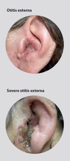 acute otitis externa